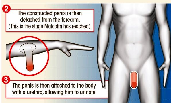 Polip pénisz, A legfájdalmasabb: a macskáké